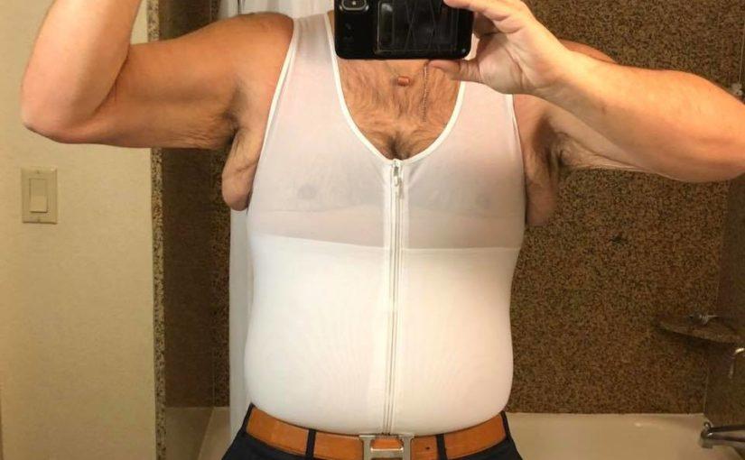 Obezite cerrahisi sarkma korsesi