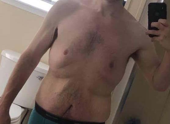 Obezite cerrahisi sarkma ve cilt buruşması